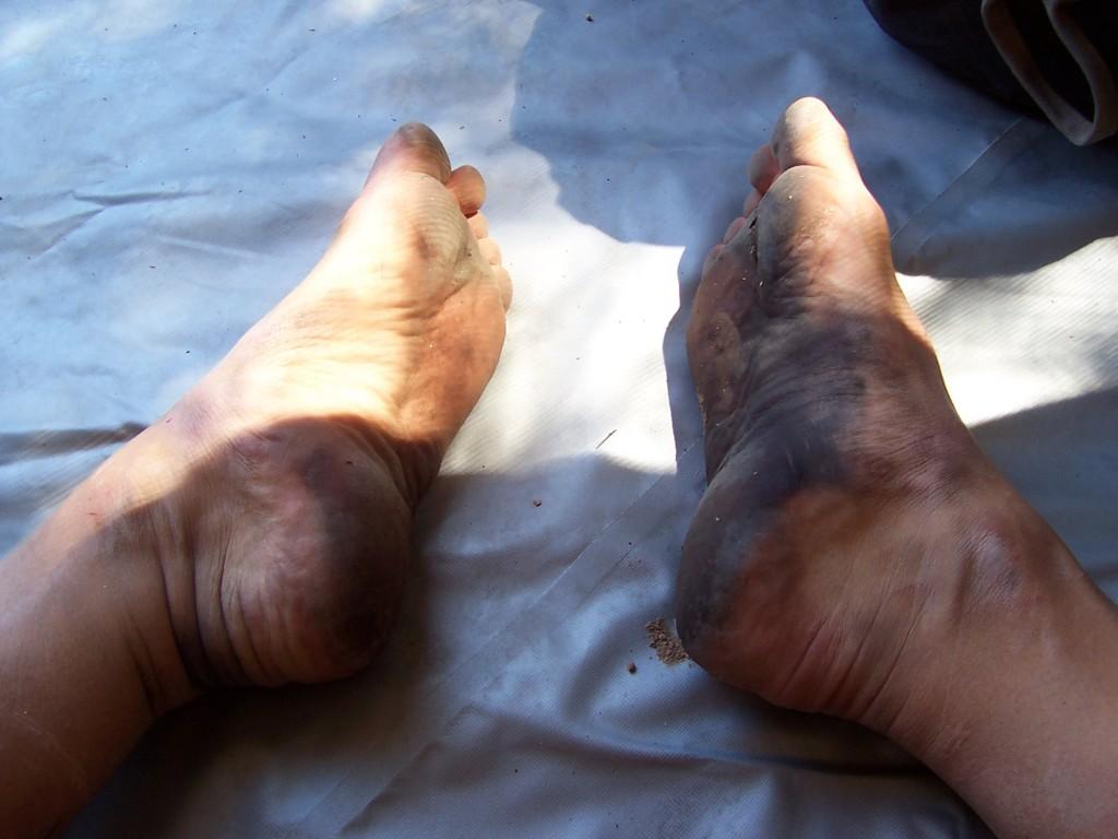 Feet still charred pretty good the next morning. Photo by Tripp Burwell.